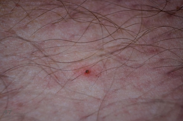 Image showing a tick attached to my leg